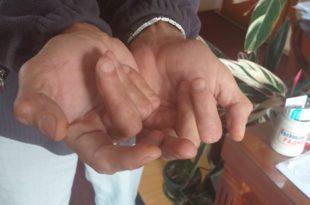 Ruke Ilije Jovovića